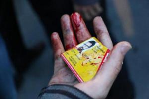 Polis müdahalesinde yaralanan bir gazetecinin basın kartı