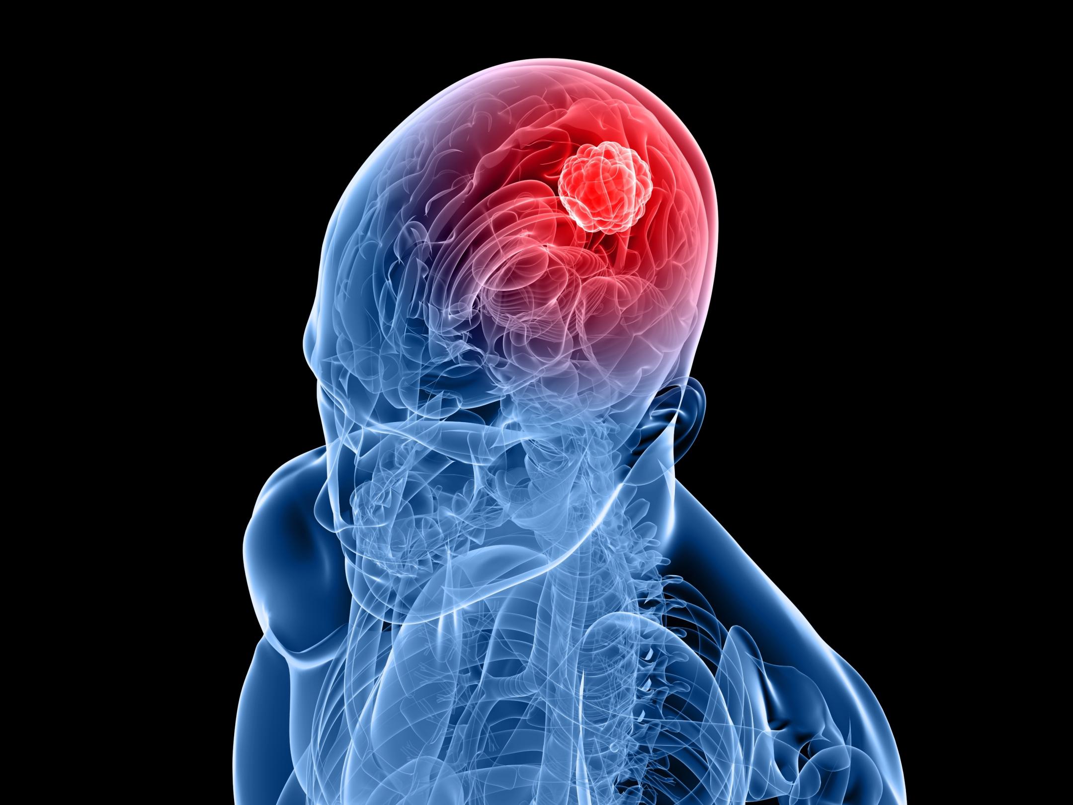 Beyin kanserinde yeni buluş
