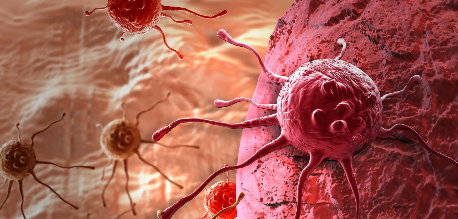 İranlı araştırmacılar, kanserin ucuz ve erken tanısı bilgisine ulaştılar
