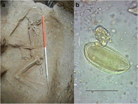 7,000 yıllık kadın iskeletinde kıl kurdu enfeksiyonu