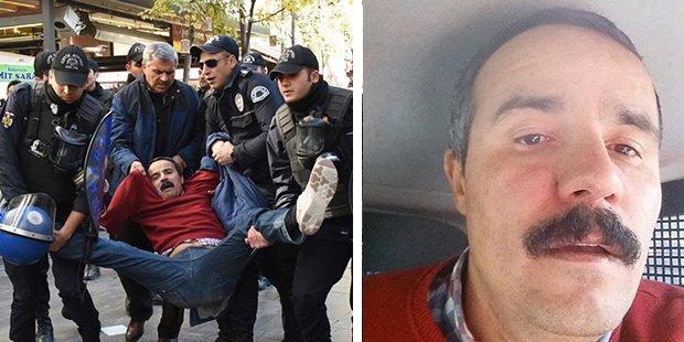Bir AKP Türkiyesi fotoğrafı: Kolu koparıldı, KHK ile işten atıldı, polis saldırısına uğradı, gözaltına alındı