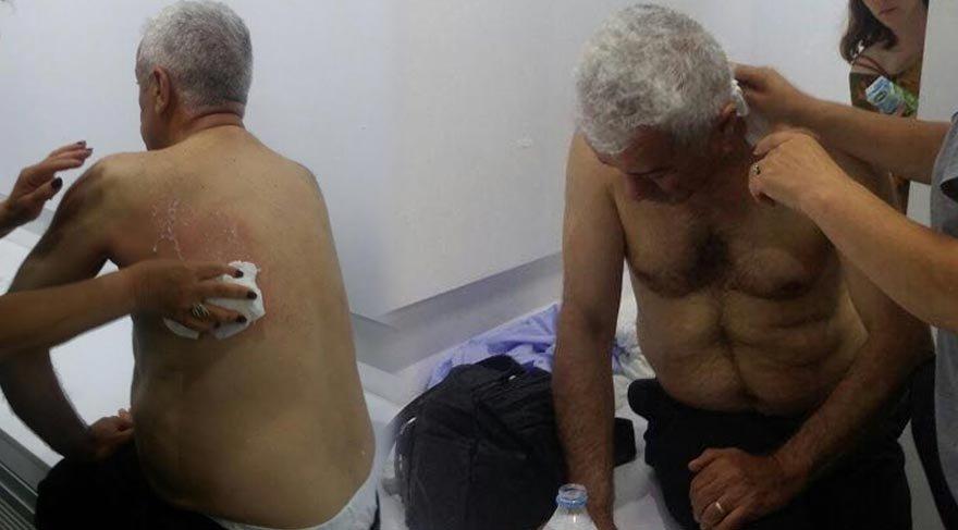 Polis CHP'li vekili vurdu