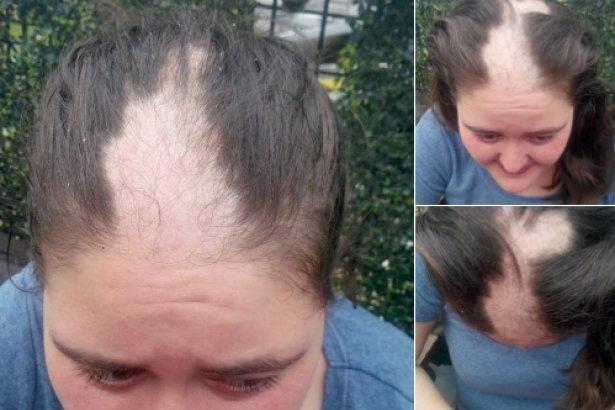 Gözaltında işkencenin fotoğrafları: Saçlarını koparıp mehter marşı eşliğinde oynadılar!