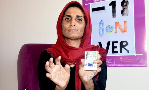 İmam nikahıyla zorla evlendirildi: 17 yıl işkence gördü, parmakları kesildi...