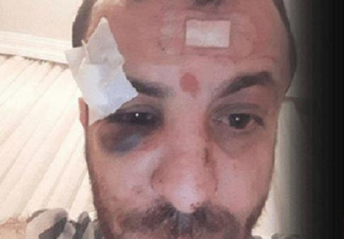 VİDEO | Polis, kimliği olmayan genci bu hale getirdi: İşte o anlar...