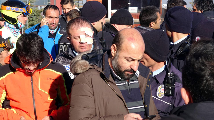 Milli Takım seçmelerinde bıçaklar çekildi: 2 yaralı, 5 sporcu gözaltında