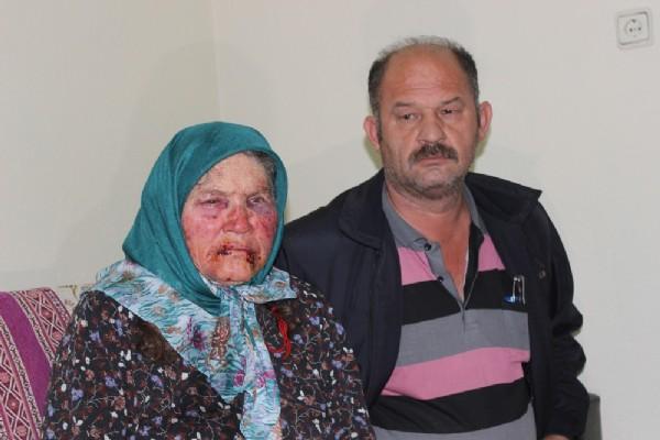 75 yaşındaki kadına öldüresiye dayak