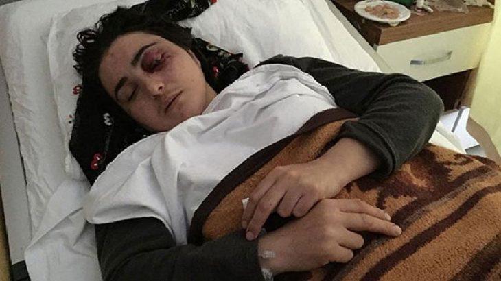 Eşinden şiddet gören kadın tek gözünü kaybetti