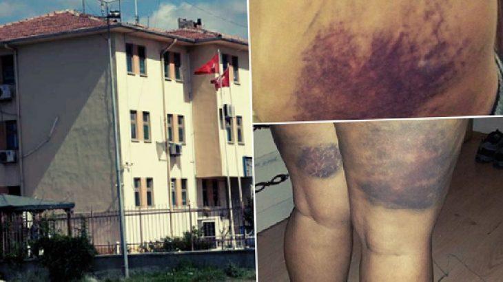 Gazi Karakolu'nda yine işkence: 'Bugün sporumu üzerinizde yaptım'