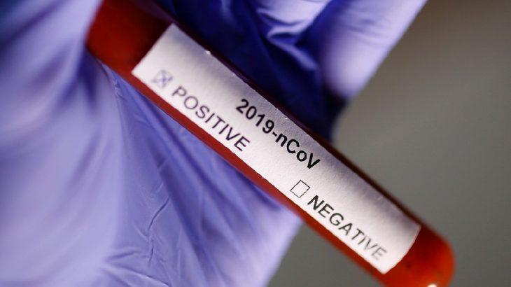Fetvası verildi: Koronavirüsten ölen de şehitmiş