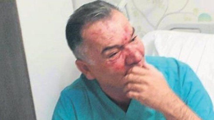 CHP'de şiddet:'Başkanın selamı var' diye diye vurdular