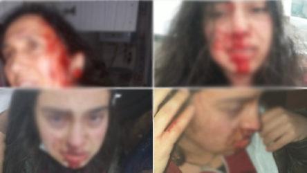 Annesi ve kendisini darp eden abisi serbest bırakılan kadın: Sesimizi ölmeden duyun