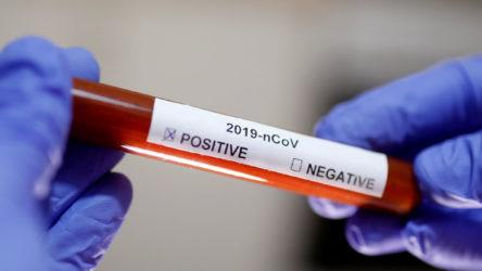 İŞKUR'da 8 memur koronavirüse yakalandı