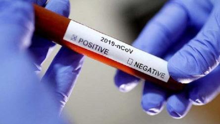 Bartın'a sahte seyahat belgesiyle girmeye çalışan kişide koronavirüs tespit edildi