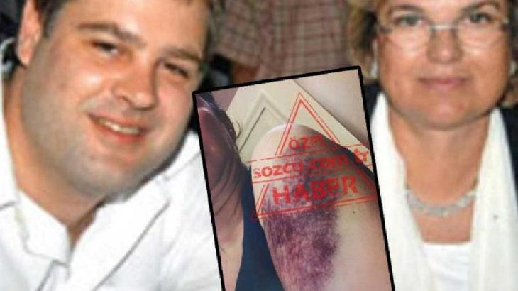 Çiller'in oğlundan eşine şiddet: 'Çocuklarını bir daha göremezsin' tehdidi