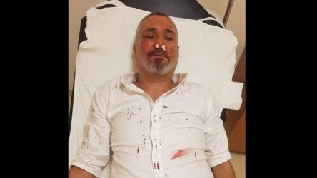 Yazıdan rahatsız olan AKP'liler gazeteciyi dövdü