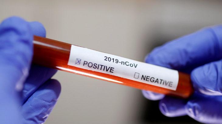 Kovid-19 testi pozitif çıkan çocuk ile babası hastaneden kaçtı