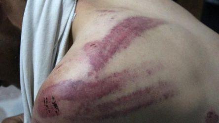 Patronu tarafından dövülen ve hapsi istenen çocuk işçi, cinsel istismardan kendini korumaya çalışmış!
