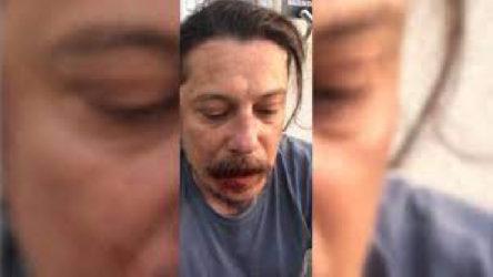 Saldırıya uğrayan gazeteci Erk Acarer, kamuoyuna açıklamalarda bulundu